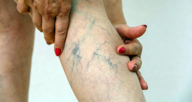 6 reasons you should not overlook the painful varicose veins